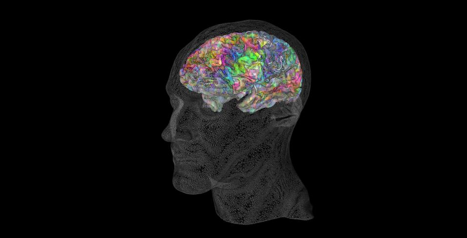 Angewandte Hirnforschung und was dies für dein Vokabellernen bedeutet